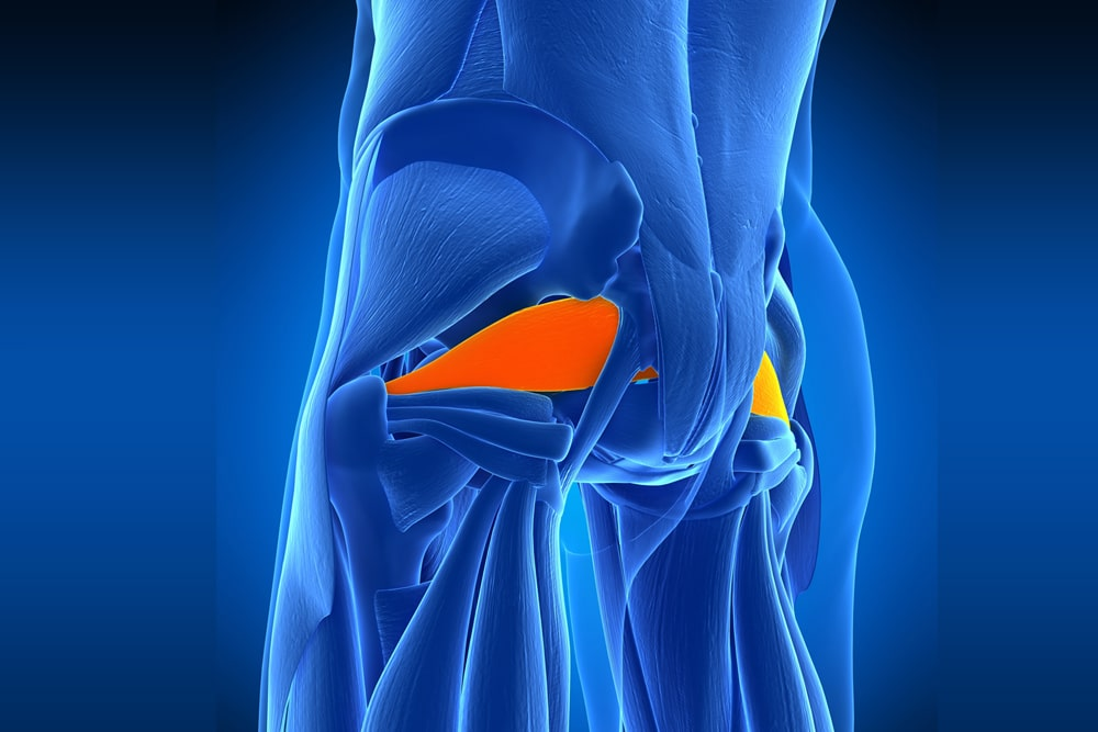 Have You Been Diagnosed with Piriformis Syndrome?